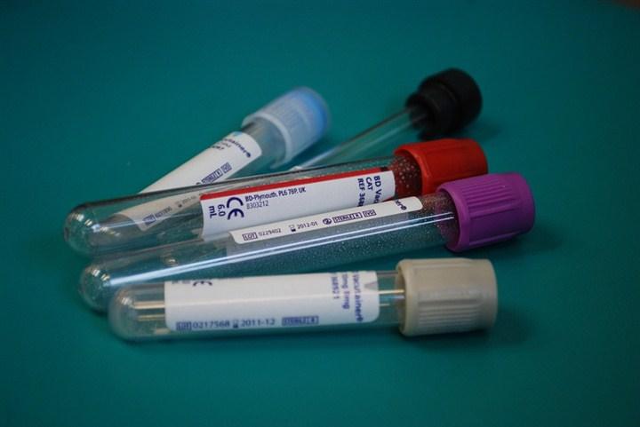 U Domu zdravlja Despotovac nove zdravstvene tehnologije u službi laboratoriske dijagnostike !!!