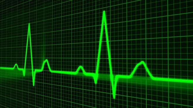 U angio sali pri Opštoj bolnici u Čačku zbrinjavaju se pacijenti iz ovog grada ali i okolnih mesta !!!