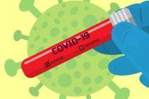 Od posledica zaraze koronavirusom u kraljevačkoj bolnici preminuo jedan pacijent !!!